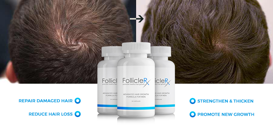 follicle rx folliclerx natural hair growth treatment west herald. Black Bedroom Furniture Sets. Home Design Ideas